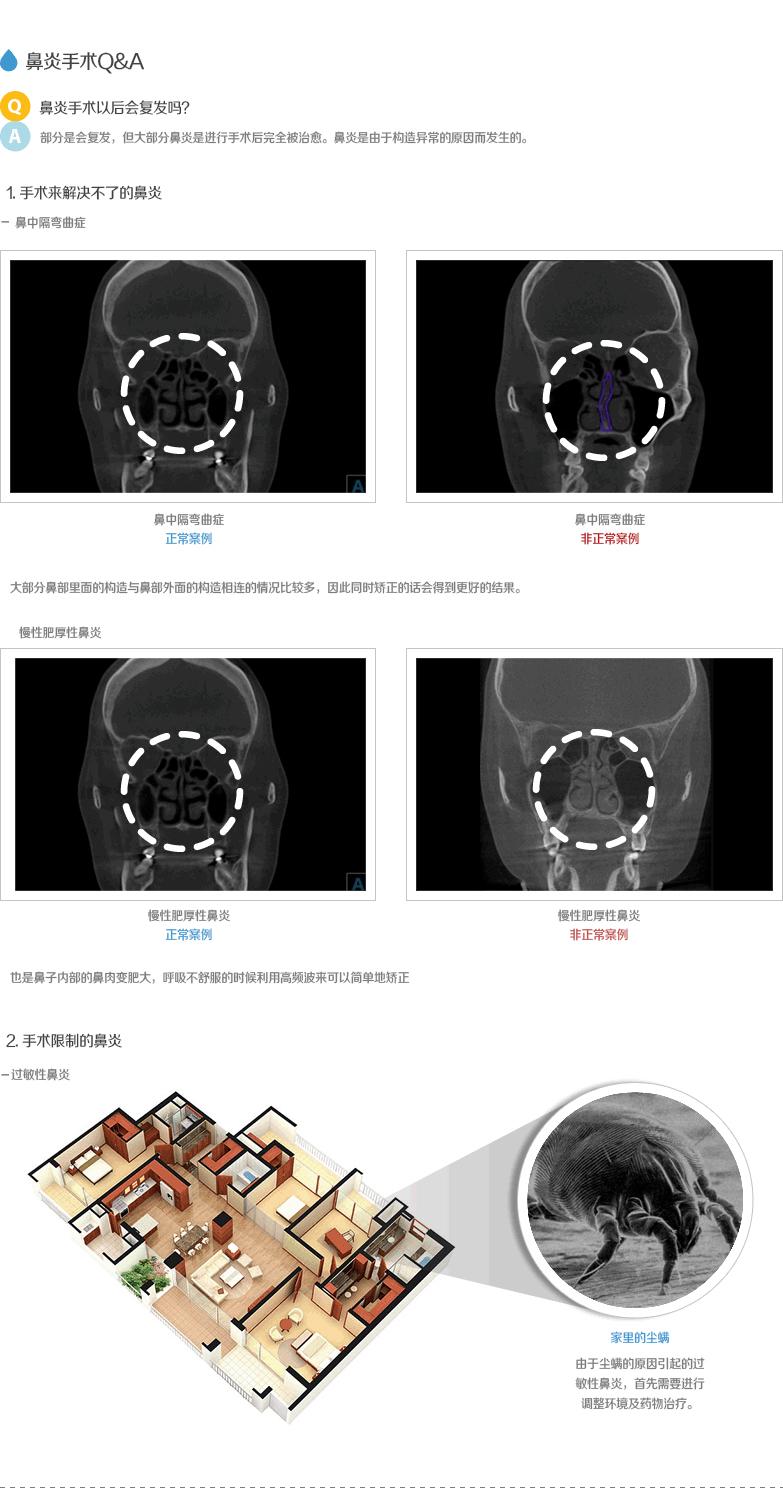 surgery_03_03
